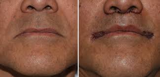 in this procedure a pennant shaped segment of skin is removed above each mouth corner down to the orbicularis muscle the vermilion mouth corner is