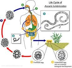 Ascariasis Roundworms Ascaris Lumbricoides Giant Roundworm