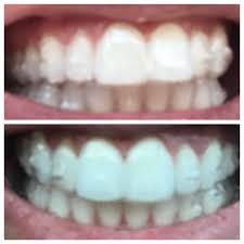 Overbite Correction Tray 1 Vs Tray 4 Hoping To See More