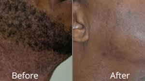 laser hair removal chesapeake vein
