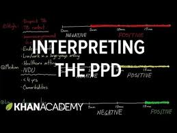 Interpreting the PPD (video) | Tuberculosis | Khan Academy