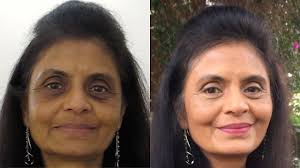 how to cover dark circles hyperpigmentation indian tan skin you