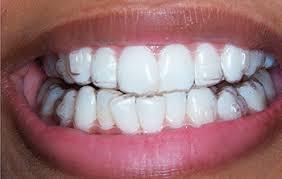 Ortodoncista Monterrey