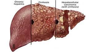 Imagini pentru ficat