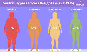 i lose with gastric byp surgery