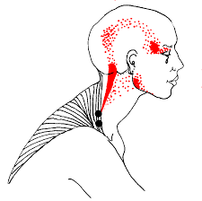 Namtpt Myofascial Trigger Point Therapy What Is It