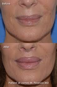 pearson lip lift photos
