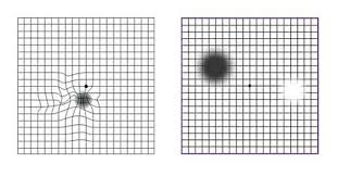 Amsler Grid How To Monitor Yourself For Macular Degeneration
