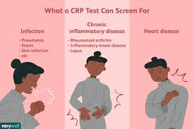 Crp Range Chart C Reactive Protein Test Uses Side Effects Procedure Results