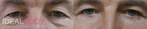 Ooglidcorrectie: Correctie bovenoogleden ooglift: info, fotos, prijzen