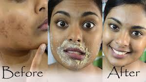 hyperpigmentation and dark upper lip