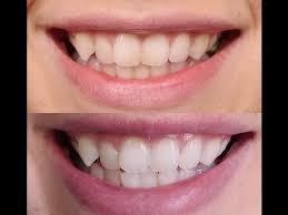 kokosolie tanden wit