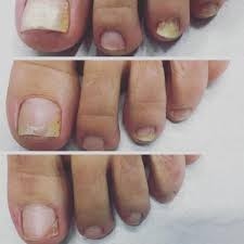 laser treatment for toenail fungus results