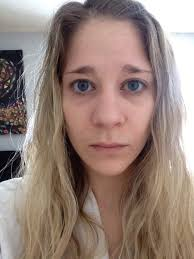 help getting rid of dark circles lines under the eyes