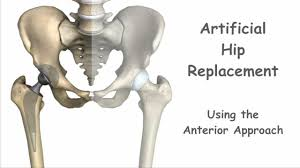 Artificial Hip Replacement Anterior Approach