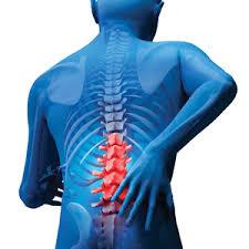 Image result for back ache