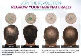 rejuvalex hair growth. Interesting Rejuvalex Rejuvalex Customer Reviews On Hair Growth