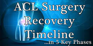 5 key acl recovery timeline ses for