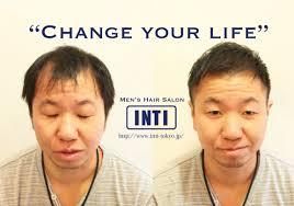 薄毛メンズ実録全体的に薄くなり透ける頭皮をヘアスタイルでカバー