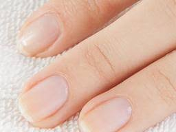 Nail Abnormalities Causes Symptoms And Pictures