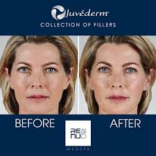 how long does juvederm take to set in