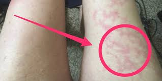 The rashes tended to appear in younger people and lasted. Unusual Skin Symptoms Of Coronavirus Covid Toes Blisters