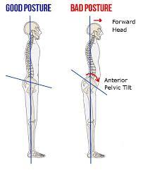 How I Fixed My Anterior Pelvic Tilt Apt Ronald Leite