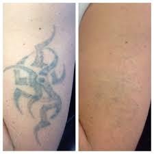 удаление татуировок лазерное удалениеудаление тату без шрамов