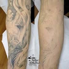 удаление татуировки спб цена осветление лазером удаление тату