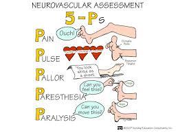 The 5 Ps Of Neurovascular Assessment Nursing Assessment