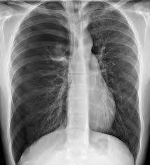 Pneumothorax Pulmonary Disorders Msd Manual Professional