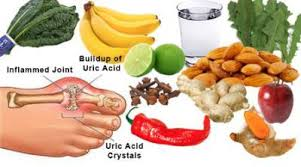 Gout Foods To Avoid Gout Diet Purines Chart Uric Acid