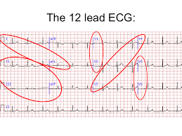 How To Read Cardiogram Chart 12 Lead Ecg Interpretation Lesson And Practice Quiz 311