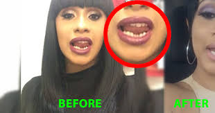 cardi B teeth before