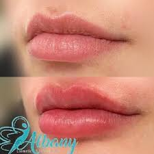 Lip Filler Chart Best Lip Fillers In Edmonton Cost Results Safety Albany