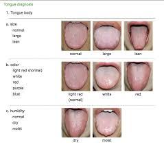 Tongue Diagnosis Doctor Natureyoga