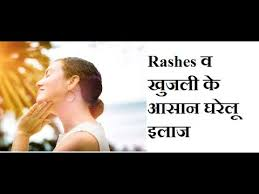 Home Remedies For Skin Rashes & Itching, How to treat Rashes ...