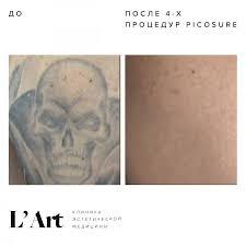 удаление татуировок лазером Picosure в москве клиника Lart