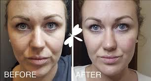 under eye filler before after