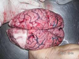 「感覚と大脳機能局在」の画像検索結果
