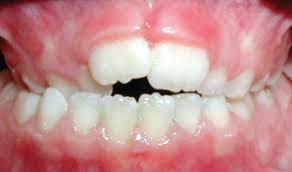 Imagini pentru common orthodontic bite problems