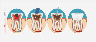 The average cost of root canal retreatment is: Endodontic Retreatment When Root Canals Fail