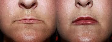 lip augmentation oxford ms s