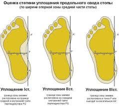 Реферат Осанка и плоскостопие ru 3 Профилактика плоскостопия