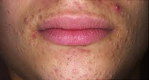 diffe types of acne how to treat them