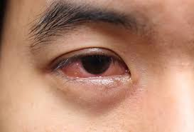 What Causes Mucus in Eye (Eye Discharge) and How to Get Rid of It?