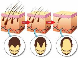 does high testosterone cause hair loss