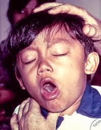 Resultado de imagen para tosedores