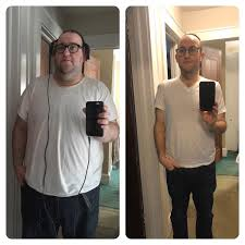 Pics Lost Months Life Surgery 11 Good Is No 161