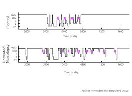 Normal Sleep Pattern Inspiration 4848bnarcolepsypolysomnogramfulljpg Healthy Sleep